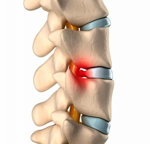 pilates-hernias